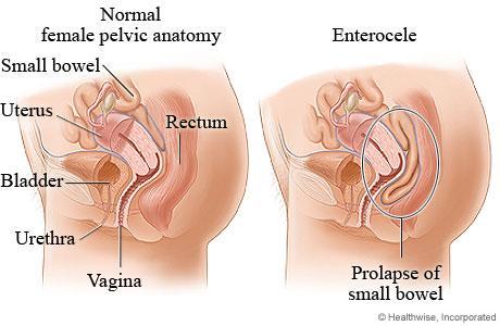 gartner uterin prolaps